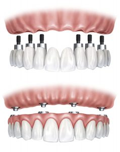 Dental Implants replacing missing teeth available at Dental Partners of Boston