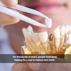 implants-history