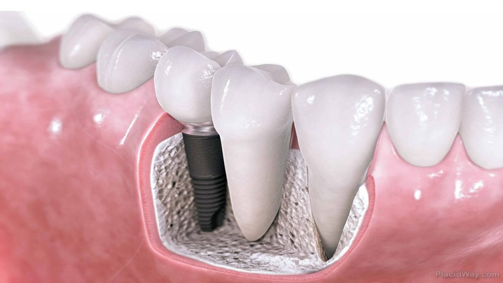 A sinus lifts are needed for dental implants