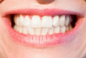 Teeth whitening systems at Dental Partners of Boston