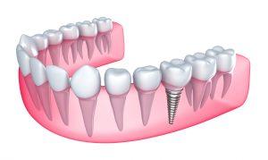 Teeth in a Day in Boston