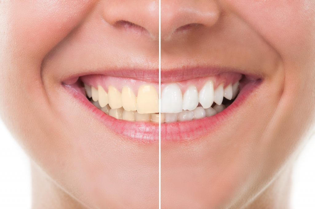 A side by side comparison of what teeth whitening can do to improve your smile from dental partners of boston