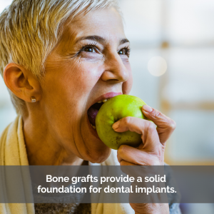 Bone grafting for solid teeth: A woman confidently takes a bite out of a green apple.