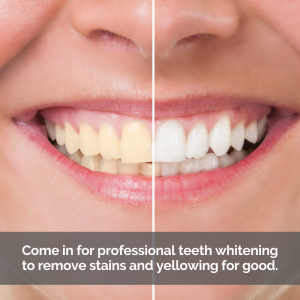 Caption: Come in for professional teeth whitening to remove stains and yellowing for good.